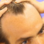 medications that cause hair loss