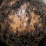 scarring alopecia