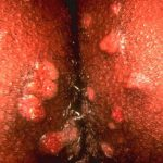 ulcer on labia