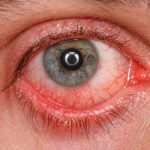 conjunctivitis pictures
