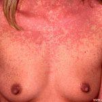 autoimmune progesterone dermatitis