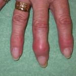 digital mucous cyst