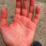 rash on palms of hands