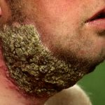 pseudofolliculitis barbae