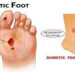 diabetics feet pictures