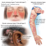 systemic disease definition