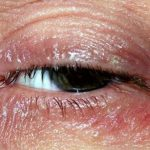 scaly eyelid