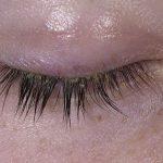 dry skin on eyelid