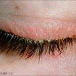 dry patches on eyelids