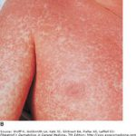 sulfa drug allergies