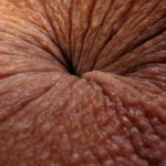 herpes anus pictures