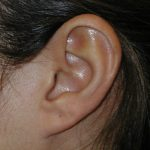 lump on ear cartilage
