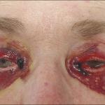 warfarin skin necrosis
