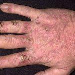 chronic eczema