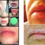 blistering rash