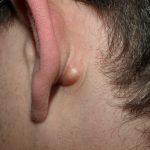 pilar cyst causes