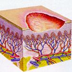 skin erosions