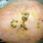 erosive pustular dermatosis