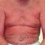 exfoliative erythroderma