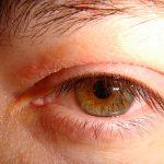 dry spots on eyelid