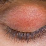 red eyelids makeup
