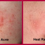 heat rash on babies face