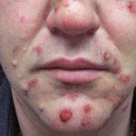 facial lesions