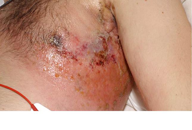 Chemo Rash Pictures Photos