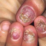 toenail conditions