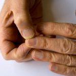 fingernail split down the middle