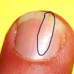 fingernail splits down the middle