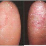fingertip rash