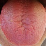 fissured tongue