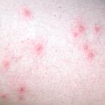 mild folliculitis