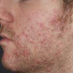 folliculitis from shaving