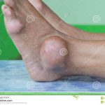 gout foot pictures
