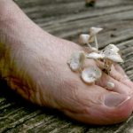 fungus on feet pictures
