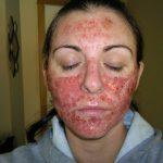 subcision acne scar