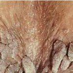 pics of genital wart