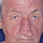granulomatous dermatitis