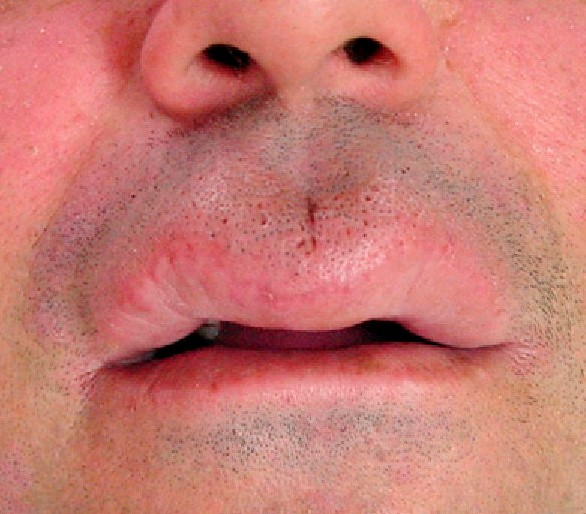 what causes swollen lips pictures photos