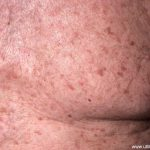 grovers disease pictures