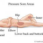 pressure sore