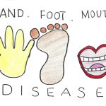 hand foot mouth disease baby