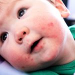 babies hand foot and mouth disease