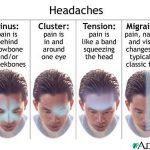headache over eyebrow