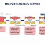 secondary intention healing