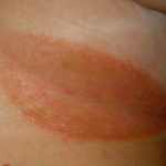 itchy rashes on body