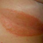 skin fold rash
