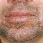 herpes around the mouth